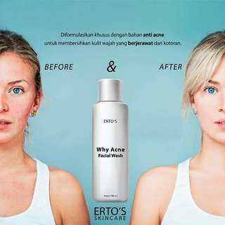 Ertos Facial Wash Acne