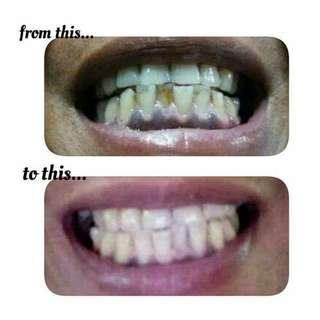 Brighter, Healthier Teeth
