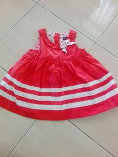Baby Dress #winkuih
