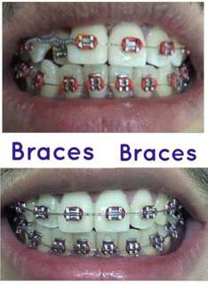 Dental Brace and Fixed Bridges
