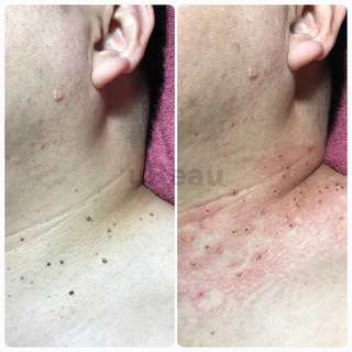 Skin tag and Mole removal