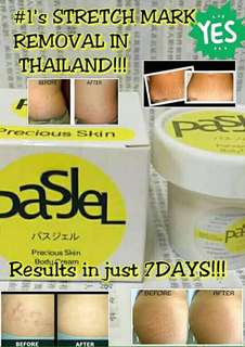 Pasjel stretch mark and scar remover
