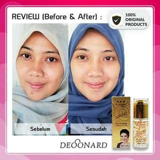 Serum deonard gold