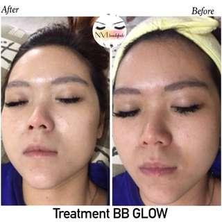 BB GLOW aplikasi 2 serum + Aftercare + Masker whitening