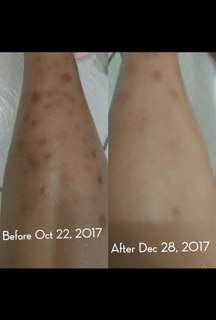 SCAR REMOVING and Whitening Lotion (ALL ORGANIC)