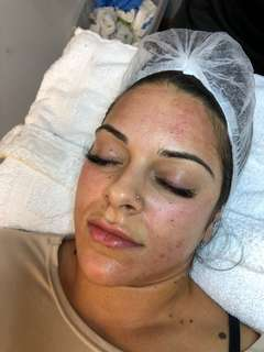 Models are needed for micro needling session reg. $260.00 price offered $150.00
