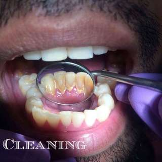 FREE DENTAL SERVICES (Cleaning, pasta, ibot, etc)