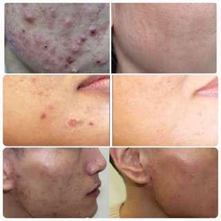IPL acne/scar/oily skin  facial
