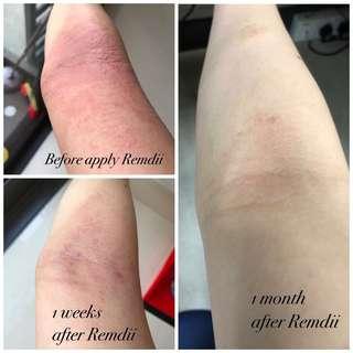 Remdii - for eczema