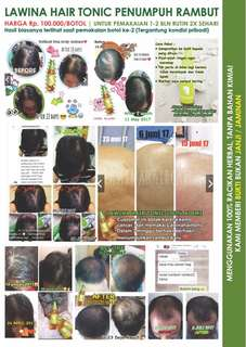 Tonic Penumbuh Rambut Rontok (PENGALAMAN PRIBADI)