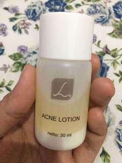 acne lotion larissa