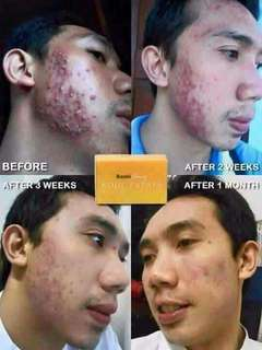 Royale kojic soap for acne