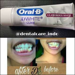 Odol oral-B 3D white lux
