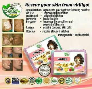 Vitiligo Soap