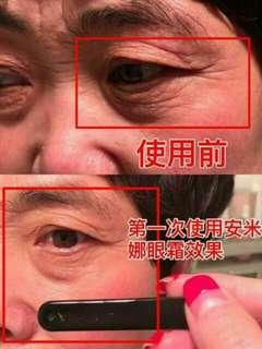 ANMYNA Repair & Nourish Eye Cream 安米娜精华眼霜