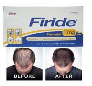 Firide 1mg - 30Tabs (1 Month Servings) Same as PROPECIA.