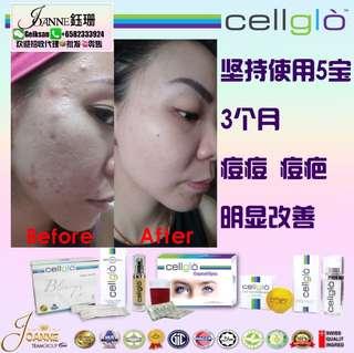 Cellglo 5 in 1