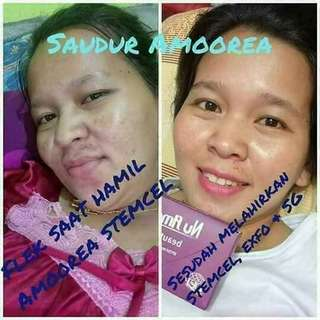 Nu amoorea stem cell & expoliant