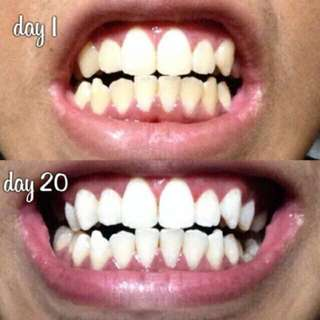 🚚 (REALLY WORKS!) Crest 3D Teeth Whitening Strips