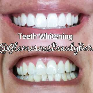 Laser teeth whitening 20 minute flash treatment  $100