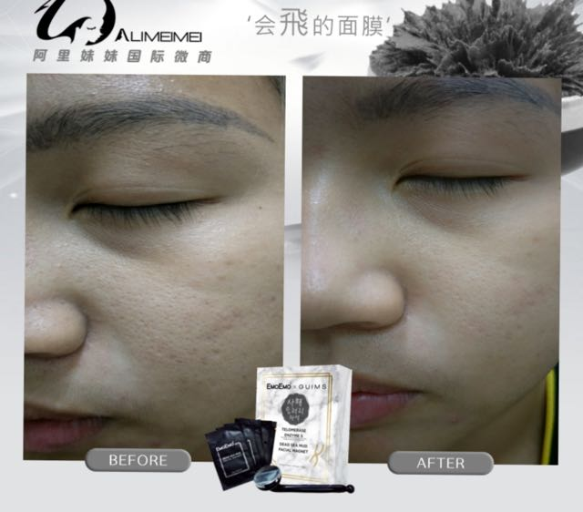 Blackheads Removal Mask