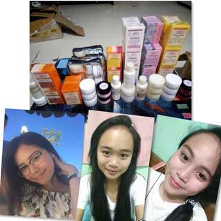 Acne Soap,Stretch Mark Cream,Kojic Soap,Glutathione Soap,Astringent,Bleaching Cream,8in1 SoapPinkish Glow Soap