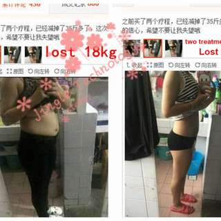 40pcs Help Sleep Lose Weight Slimming Patch Weight