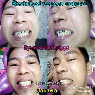 "Restorasi gigi kropos atau bolong"""