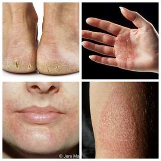 Eczema / Hand or Mouth Dermatitis / Dry & Cracked Heels