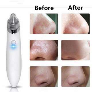Electric Black head Cleaner Acne Remover Facial Pore Blemish Cleanser Tool Kit White!