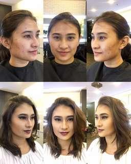 Acne coverage makeup (Amateur Makeup Artist)