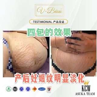 🚚 Collagen V-beau 🌵胶原蛋白 🌵 ✅母乳妈妈可服用 ✅孕妇可服用 ✅男女可服用 ✅素食者可服用 ✅月经期间可服用 💯成分崭新👉前所未有的🌵🌵🌵  这是一款直接口服的胶原蛋白 🌵 1 Box $44马币 Rm130 2 Box  $74 马币 Rm220 4 Box $142 马币 Rm420 🍀WeChat : coey2808 🌸Facebook:http://www.facebook.com/coey2808.cellglo