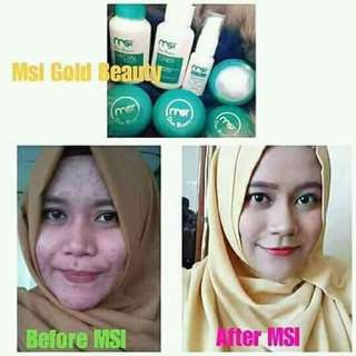Skincare gold beauty