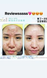 Rice Spa Mask