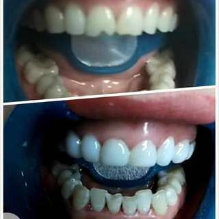 Teeth whitening and beauty