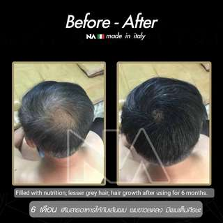Anti hair loss and Hair growth tonic