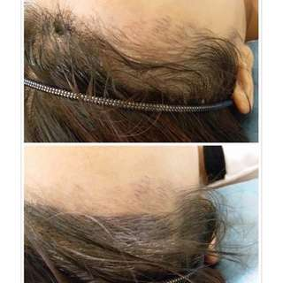 Permanent make up hairline singapore
