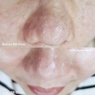 BB Glow with omega light