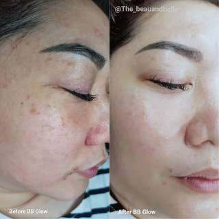 BB Glow Treatment with omega light