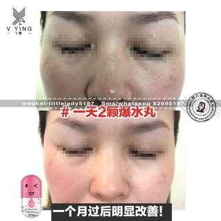 Skin care-collagen jelly