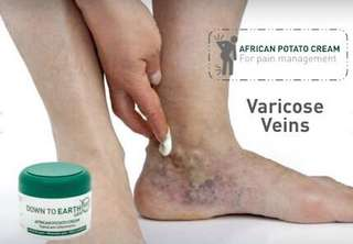 #African Potato Cream #Variscose veins