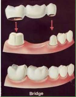 Fixed denture(pustiso)