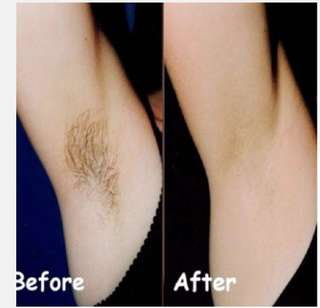 Laser - Elight (IpL) - underarm hair removal one session $18 only for Female customers