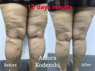 💯 %由日本进口的Kodenshi Pant 。不用动手术 。不用服减肥药 。不用节食 。不用运动 即可轻松塑身!