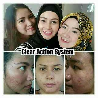 clear action system