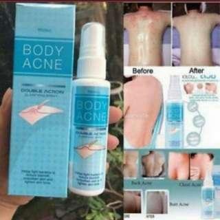 Dry up body acne