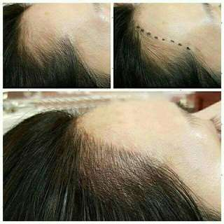 Hairline Embroidery