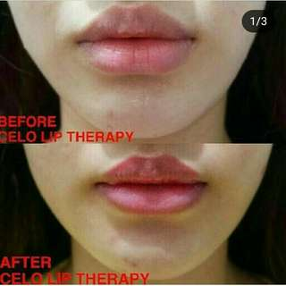 Celo lip therapy 5gr