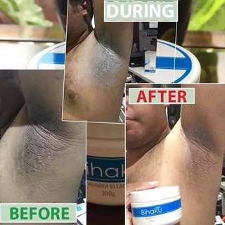 🚚 Dark Underarm Armpit Solution / Whitening / Lightening