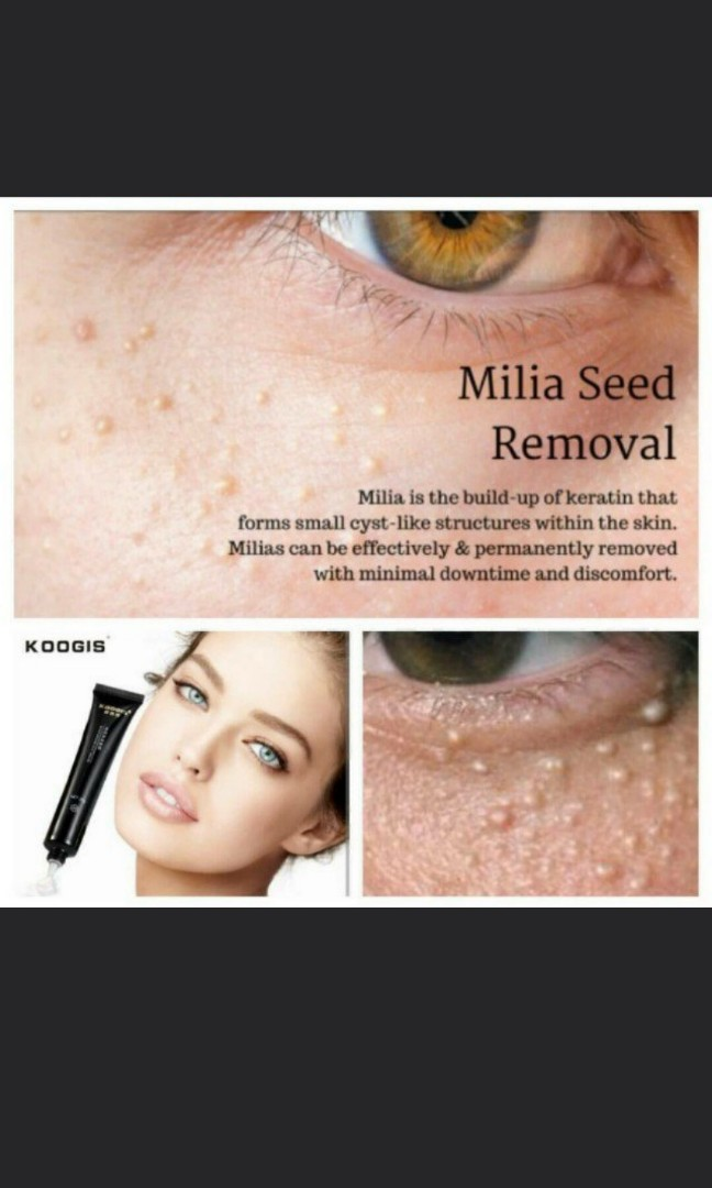 Mila seed removal